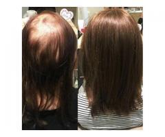 Masz problem , pomożemy Ci niechirurgiczne przedłuzanie włosów