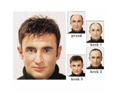 niechirurgiczne uzupełnianie włosów dla mężczyzn , Dorota Olejniczak